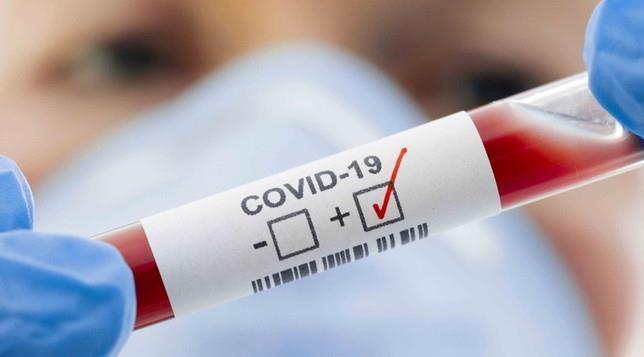 Sítio dos Nunes registra primeiro caso de coronavírus